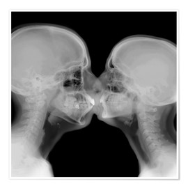 Póster  X-ray of a couple kissing - PhotoStock-Israel