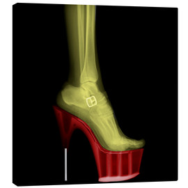 Lienzo  X-ray Stiletto High-Heeled Shoe - PhotoStock-Israel