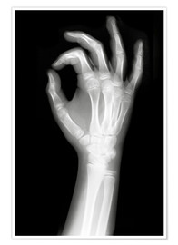 Póster  X rayed OK sign