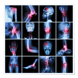 Póster  Human joint, arthritis and stroke