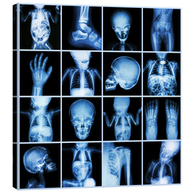 Lienzo  Xrays of a child body