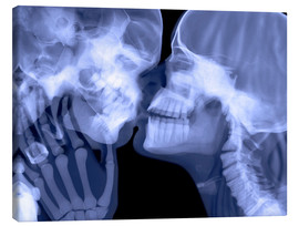 Lienzo  Lovers kissing, X-ray - Gustoimages